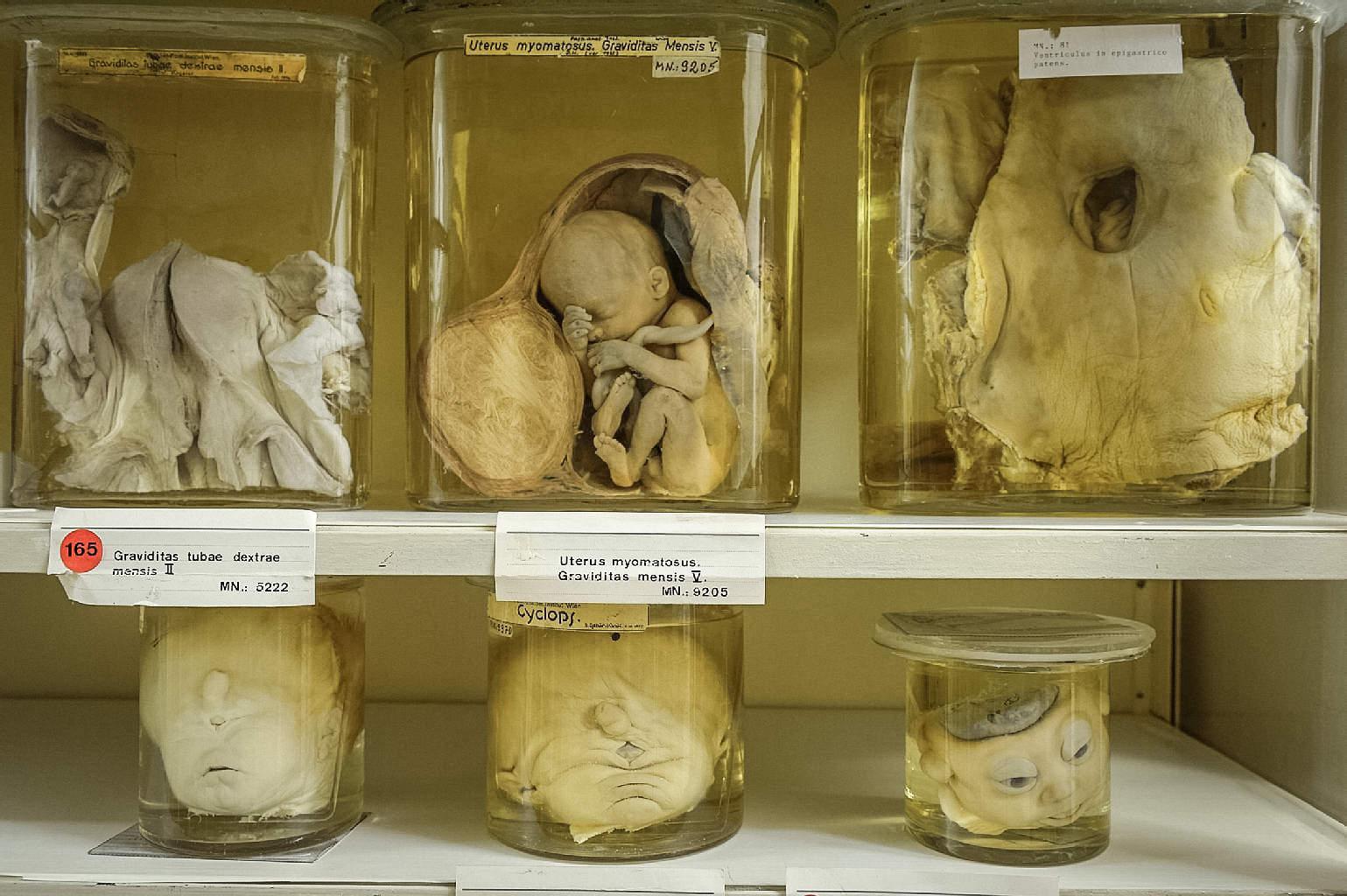 В патологоанатомическом музее